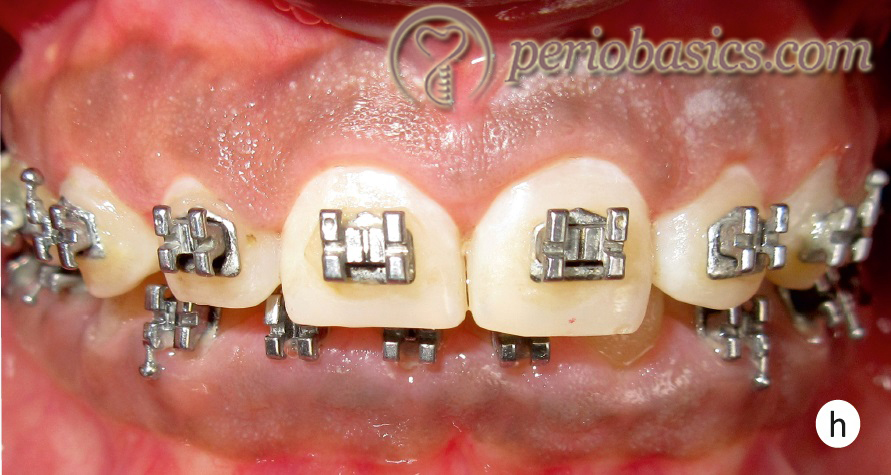 Gingivectomy case h
