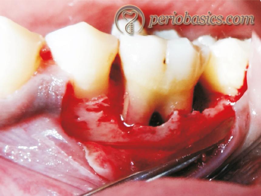 Guided tissue regeneration (b)