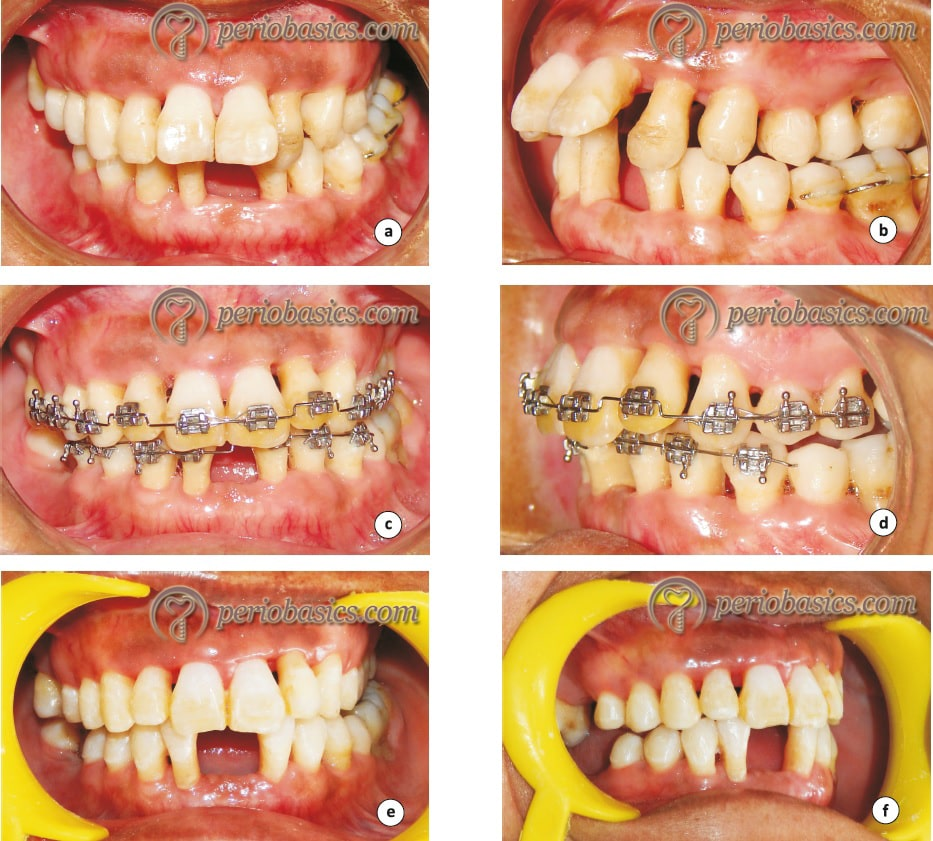 Orthodontic treatment of periodontally compromised patient with orthodontic intrusion