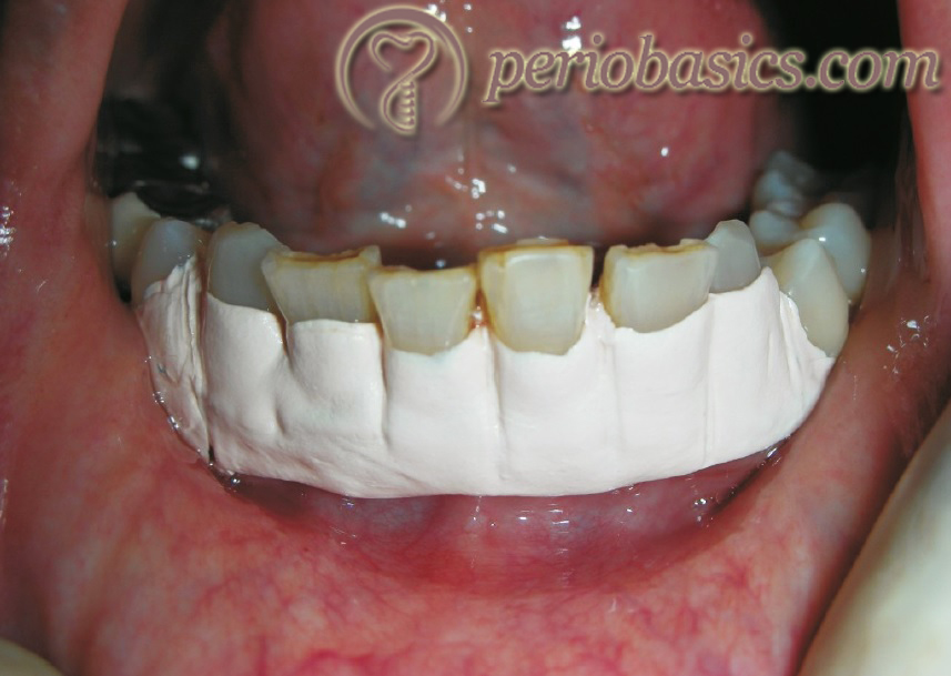 Placement of periodontal dressing