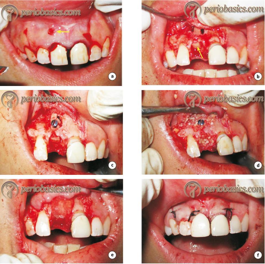 The guided bone regeneration procedure