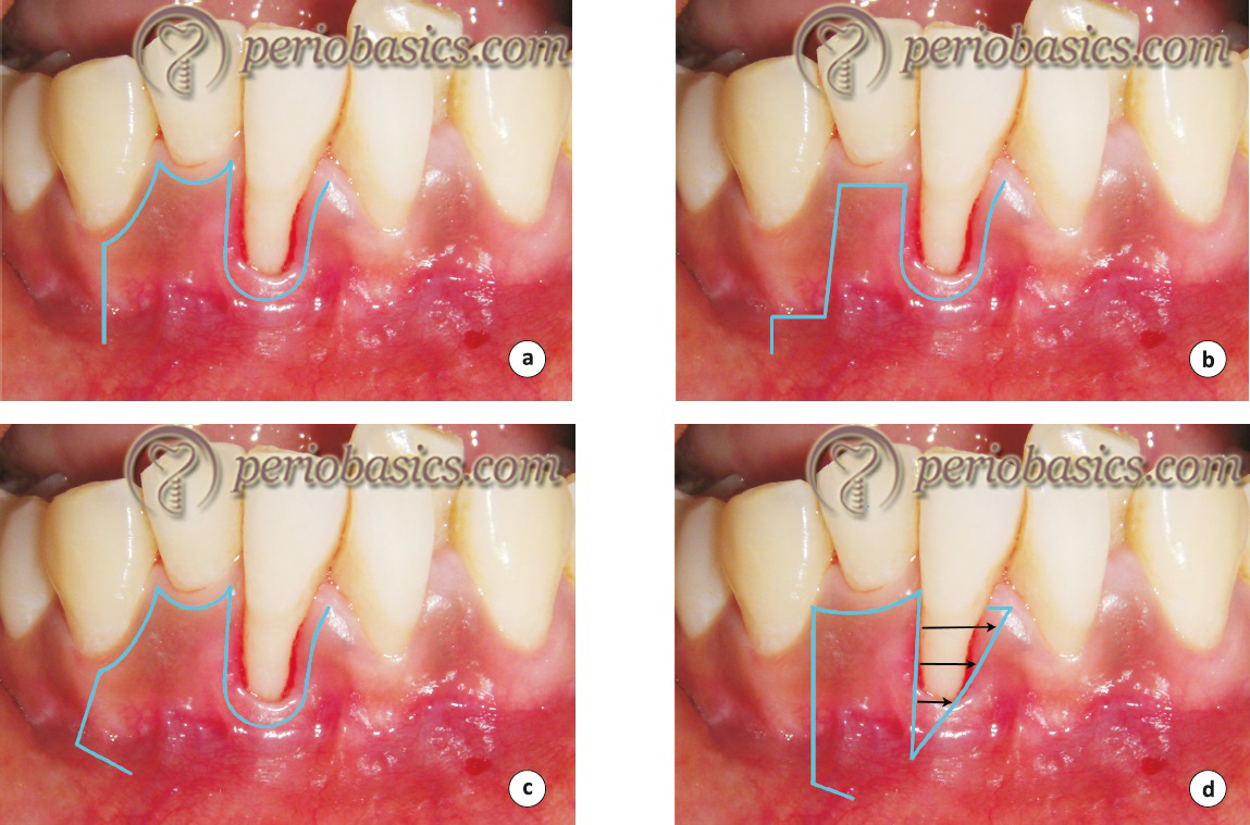 Variations in incision design for lateral pedicle graft procedure